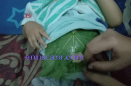 Pengalaman Mengatasi Perut Kembung Pada Bayi 1 Tahun